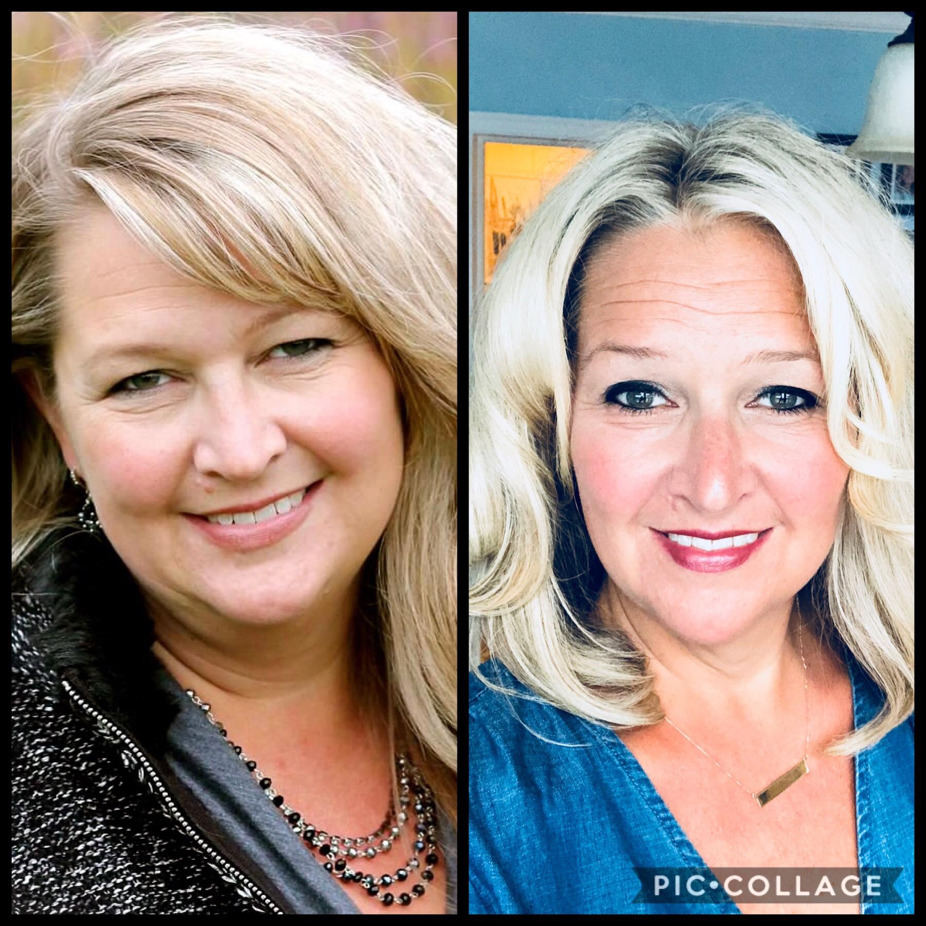 Valerie Bestland Before & After